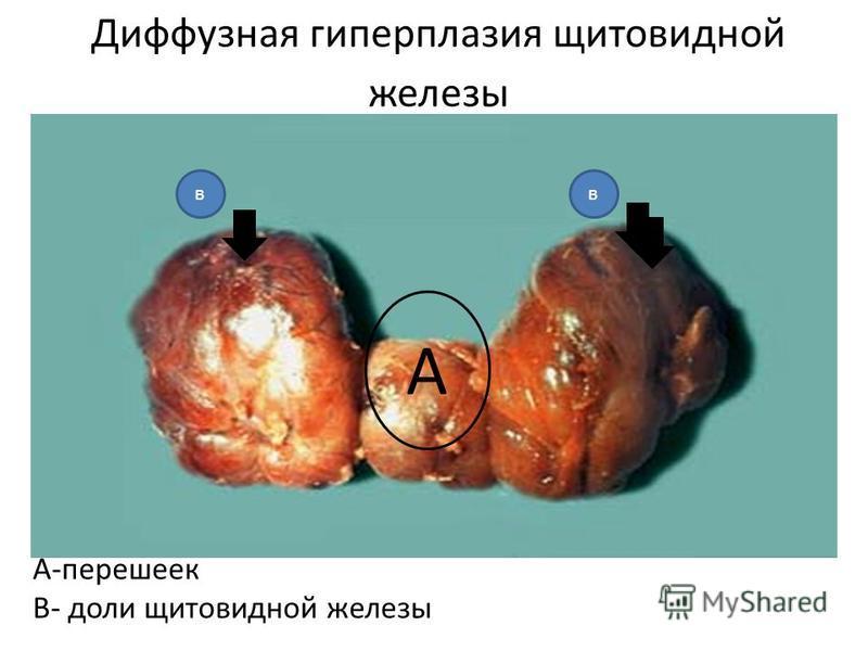 Диффузная гиперплазия щитовидной железы А-перешеек В- доли щитовидной железы А вв
