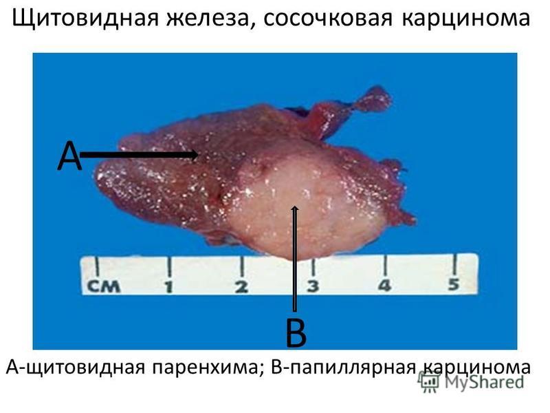 Щитовидная железа, сосочковая карцинома А-щитовидная паренхима; В-папиллярная карцинома А В