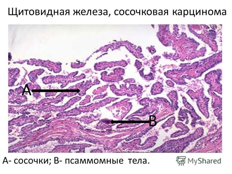 Щитовидная железа, сосочковая карцинома А- сосочки; В- псаммомные тела. А В