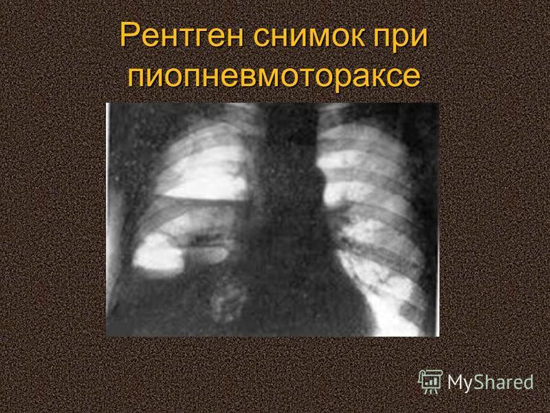 Рентген снимок при пиопневмотораксе