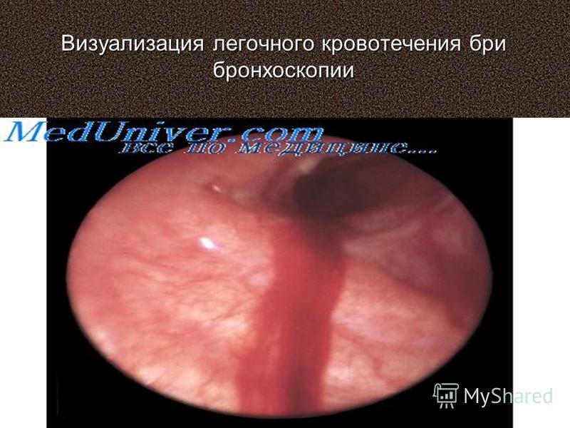 Визуализация легочного кровотечения бри бронхоскопии