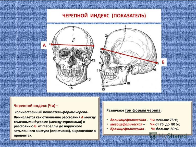http://images.myshared.ru/44/1335515/slide_33.jpg