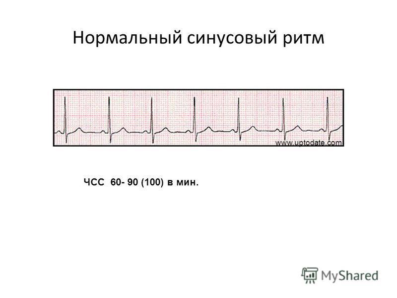 Нормальный синусовый ритм ЧСС 60- 90 (100) в мин. www.uptodate.com II