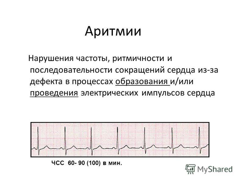 Аритмии Нарушения частоты, ритмичности и последовательности сокращений сердца из-за дефекта в процессах образования и/или проведения электрических импульсов сердца ЧСС 60- 90 (100) в мин.