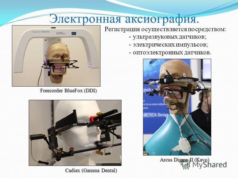 Электронная аксиография. Arcus Digma II (Kavo) Регистрация осуществляется посредством: - ультразвуковых датчиков; - электрических импульсов; - оптоэлектронных датчиков. Freecorder BlueFox (DDI) Cadiax (Gamma Dental)