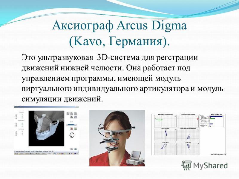 Аксиограф Arcus Digma (Kavo, Германия). Это ультразвуковая 3D-система для регстрации движений нижней челюсти. Она работает под управлением программы, имеющей модуль виртуального индивидуального артикулятора и модуль симуляции движений.