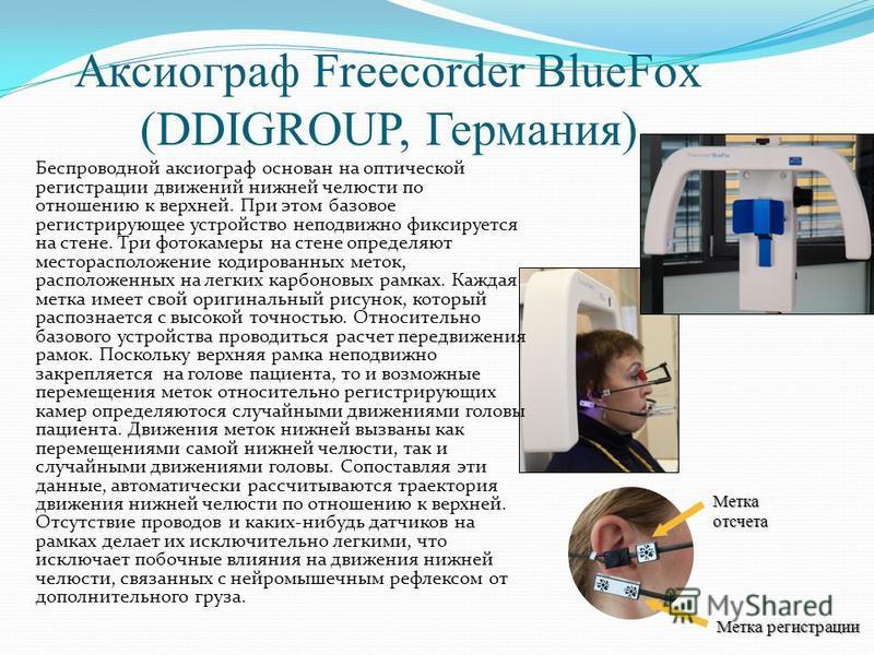 Аксиограф Freecorder BlueFox (DDIGROUP, Германия) Беспроводной аксиограф основан на оптической регистрации движений нижней челюсти по отношению к верхней. При этом базовое регистрирующее устройство неподвижно фиксируется на стене. Три фотокамеры на с