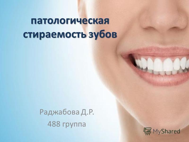 патологическая стираемость зубов Раджабова Д.Р. 488 группа