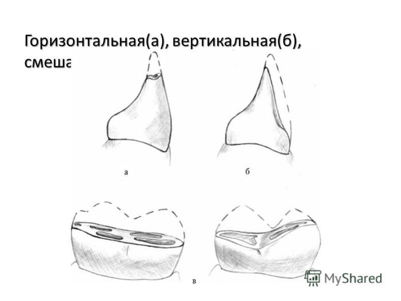 Горизонтальная(а), вертикальная(б), смешанная(в)