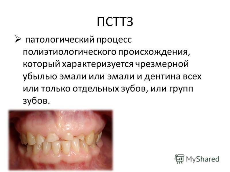 ПСТТЗ патологический процесс полиэтиологического происхождения, который характеризуется чрезмерной убылью эмали или эмали и дентина всех или только отдельных зубов, или групп зубов.