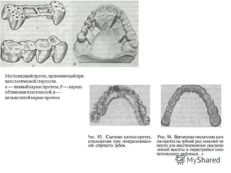 Мостовидный протез, применяемый при патологической стертости. а паяный каркас протеза; б каркас облицован пластмассой; в цельнолитой каркас протеза