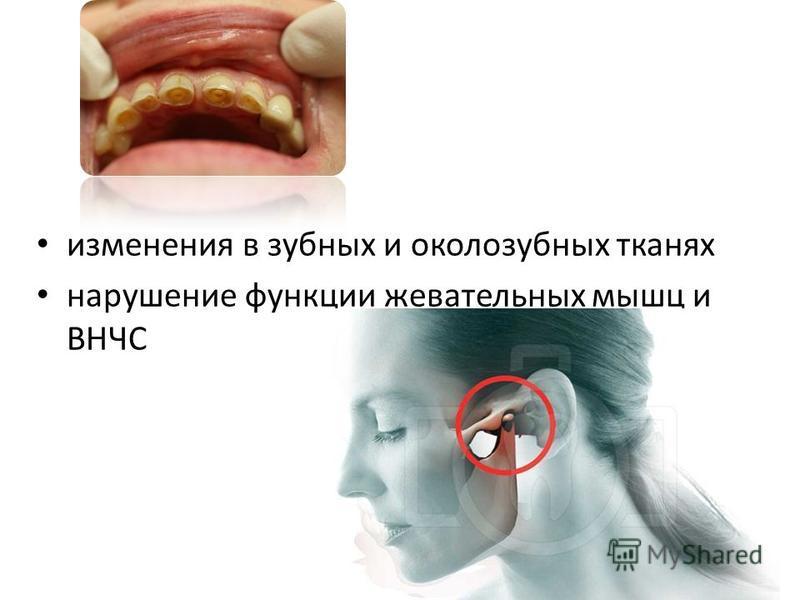 изменения в зубных и околозубных тканях нарушение функции жевательных мышц и ВНЧС