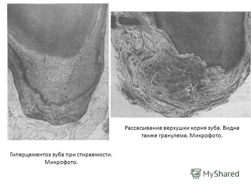 Рассасывание верхушки корня зуба. Видна также гранулема. Микрофото. Гиперцементоз зуба при стираемости. Микрофото.