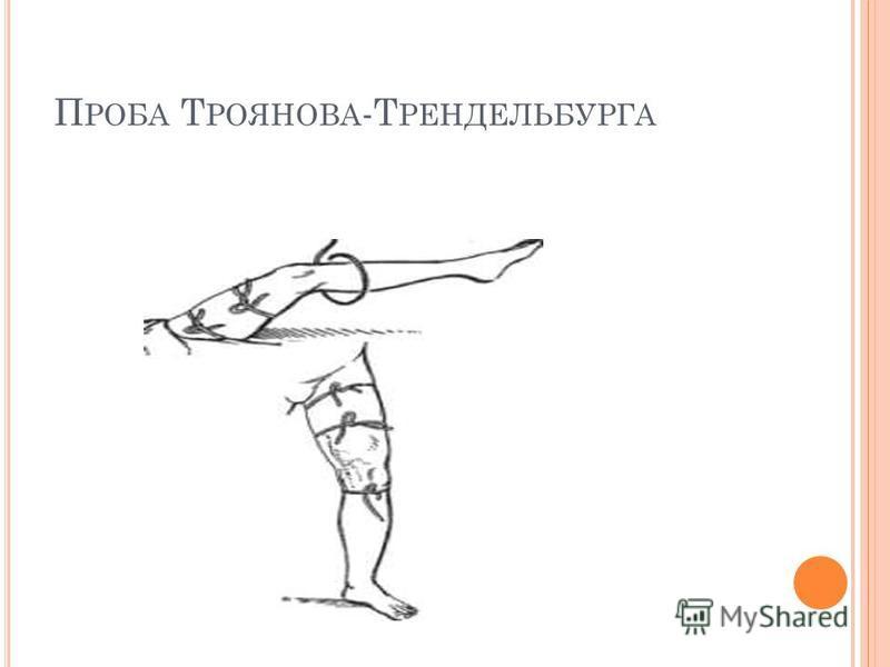 П РОБА Т РОЯНОВА -Т РЕНДЕЛЬБУРГА