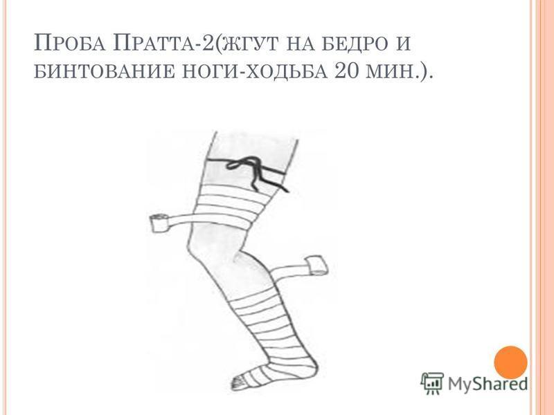 П РОБА П РАТТА -2( ЖГУТ НА БЕДРО И БИНТОВАНИЕ НОГИ - ХОДЬБА 20 МИН.).