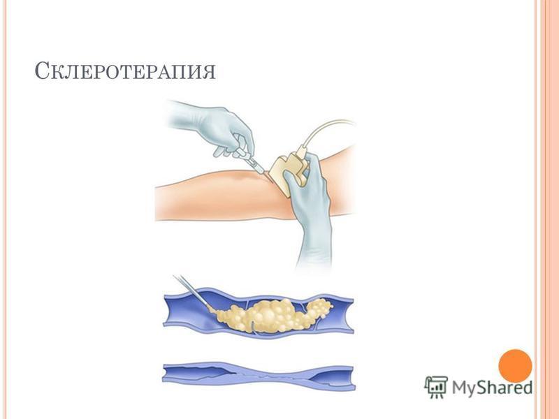 С КЛЕРОТЕРАПИЯ
