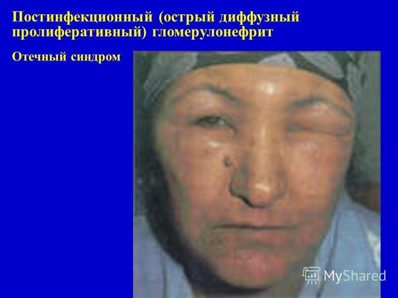 Постинфекционный (острый диффузный пролиферативный) гломерулонефрит Отечный синдром