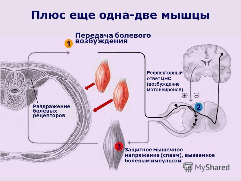 Плюс еще одна-две мышцы Раздражение болевых рецепторов Защитное мышечное напряжение (спазм), вызванное болевым импульсом Передача болевого возбуждения 1 2 Рефлекторный ответ ЦНС (возбуждение мотонейронов) 3