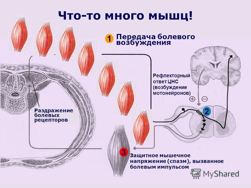 Что-то много мышц! Раздражение болевых рецепторов Защитное мышечное напряжение (спазм), вызванное болевым импульсом Передача болевого возбуждения 1 2 Рефлекторный ответ ЦНС (возбуждение мотонейронов) 3