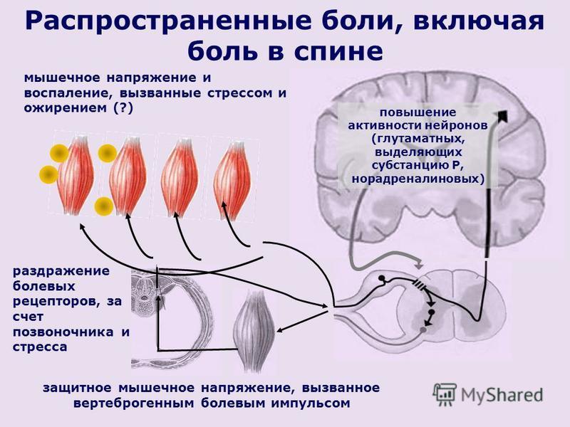 Распространенные боли, включая боль в спине раздражение болевых рецепторов, за счет позвоночника и стресса защитное мышечное напряжение, вызванное вертеброгенным болевым импульсом повышение активности нейронов (глутаматных, выделяющих субстанцию Р, н