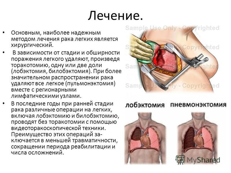 Лечение. Основным, наиболее надежным методом лечения рака легких является хирургический. В зависимости от стадии и обширности поражения легкого удаляют, произведя торакотомию, одну или две доли (лобэктомия, билобэктомия). При более значительном распр