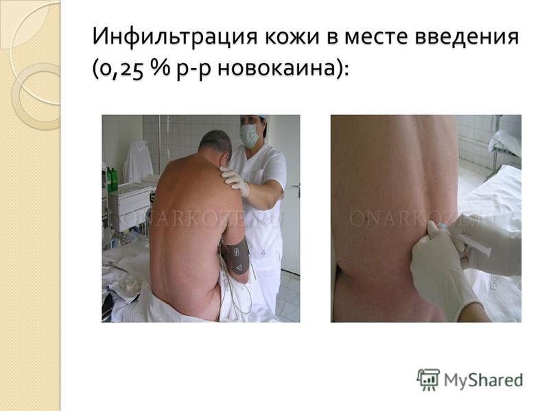 Инфильтрация кожи в месте введения (0,25 % р - р новокаина ):