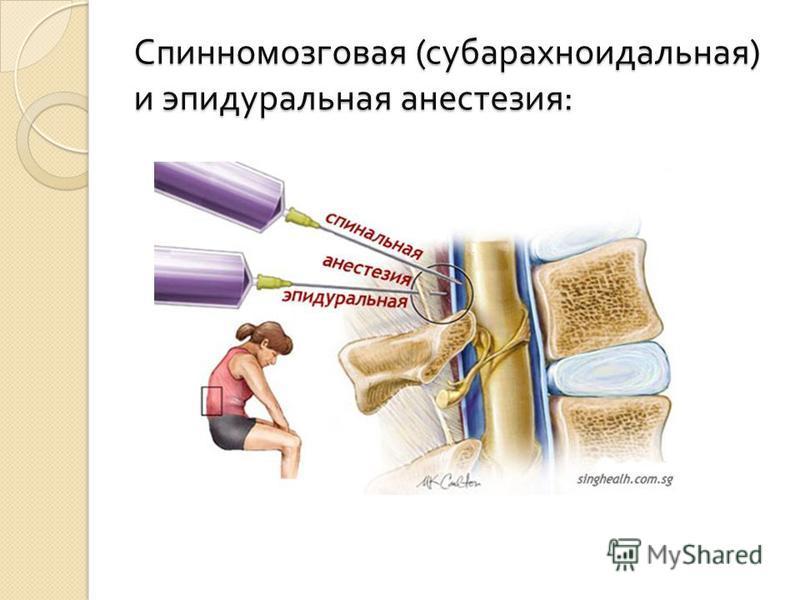 Спинномозговая ( субарахноидальная ) и эпидуральная анестезия :
