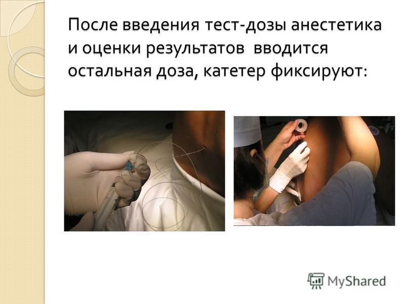После введения тест - дозы анестетика и оценки результатов вводится остальная доза, катетер фиксируют :
