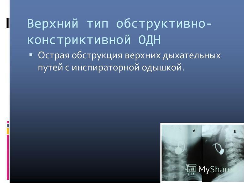 Верхний тип обструктивнойй- констриктивной ОДН Острая обструкция верхних дыхательных путей с инспираторной одышкой.