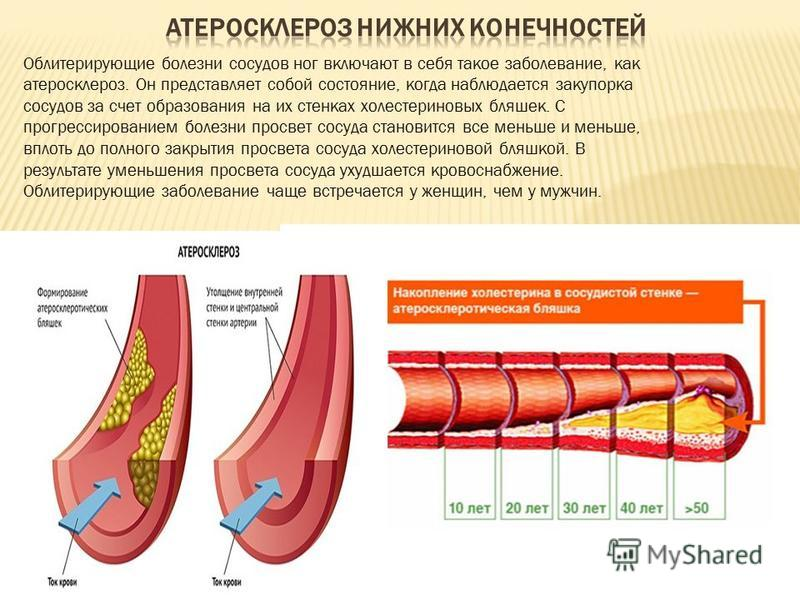 статины боль мышцах