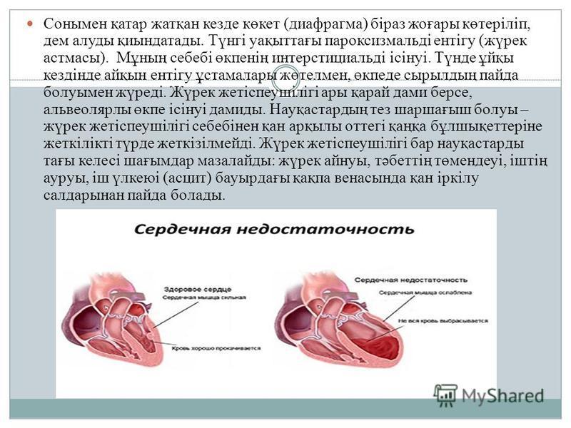 Сонымен қатар жатқан кезде көкет (диафрагма) біраз жоғары көтеріліп, дем алуды қиындатады. Түнгі уақыттағы пароксизмальді ентігу (жүрек астмасы). Мұның себебі өкпенің интерстициальді ісінуі. Түнде ұйқы кездінде айқын ентігу ұстамалары жөтелмен, өкпед