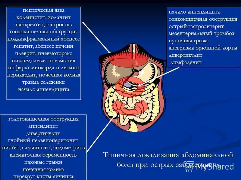 начало аппендицита тонкокишечная обструкция острый гастроэнтерит мезентериальный тромбоз пупочная грыжа аневризма брюшной аорты дивертикулит лимфаденит пептическая язва холецистит, холангит панкреатит, гастростаз тонкокишечная обструкция поддиафрагма