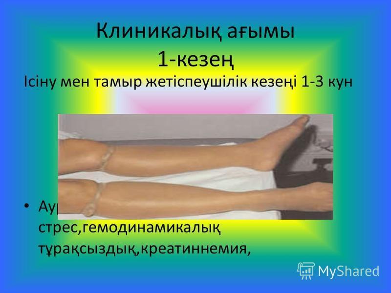 Клиникалық ағымы 1-кезең Ісіну мен таймыр жетіспеушілік кезеңі 1-3 кун Ауру сезімі,психоэмоцианалды стресс,гемодинамикалық тұрақсыздық,креатиннемия,