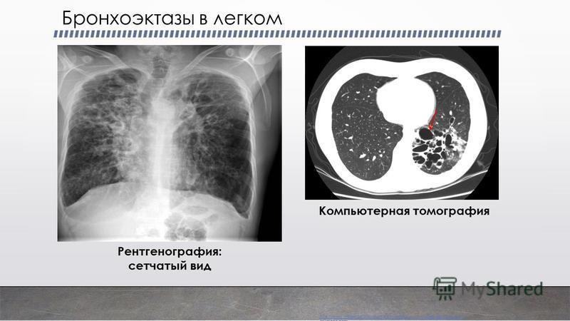 Бронхоэктазы в легком Компьютерная томография Рентгенография: сетчатый вид http://www.imagingpathways.health.wa.gov.au/includes/dipmenu/br_e ct/image.html