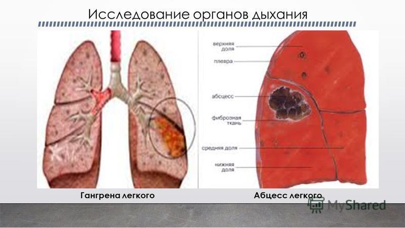 Абцесс легкого Гангрена легкого Исследование органов дыхания