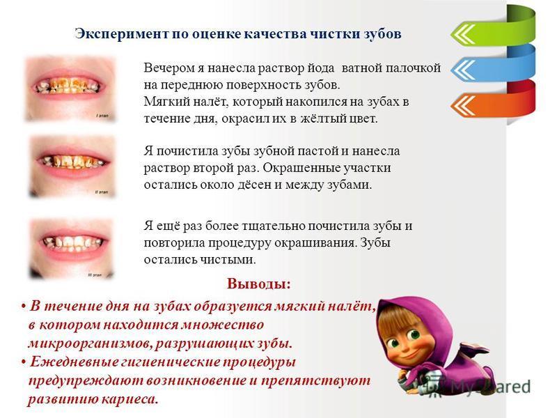 Эксперимент по оценке качества чистки зубов Вечером я нанесла раствор йода ватной палочкой на переднюю поверхность зубов. Мягкий налёт, который накопился на зубах в течение дня, окрасил их в жёлтый цвет. Я почистила зубы зубной пастой и нанесла раств