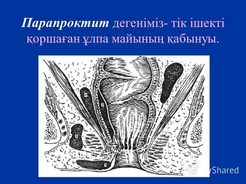 Парапроктит дегеніміз- тік ішекті қоршаған ұлпа майының қабынуы.
