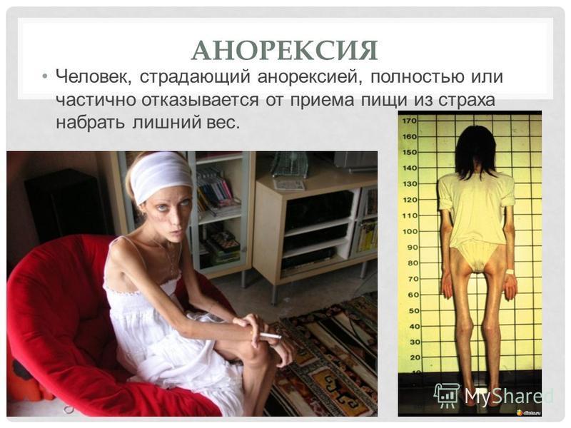 АНОРЕКСИЯ Человек, страдающий анорексией, полностью или частично отказывается от приема пищи из страха набрать лишний вес.