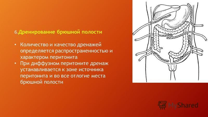 6. Дренирование брюшной полости Количество и качество дренажей определяется распространенностью и характером перитонита При диффузном перитоните дренаж устанавливается к зоне источника перитонита и во все отлогие места брюшной полости