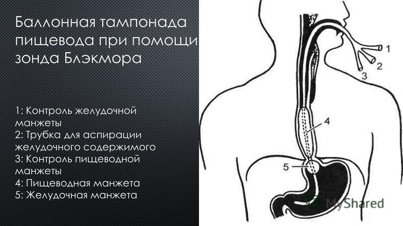 Баллонная тампонада пищевода при помощи зонда Блэкмора 1: Контроль желудочной манжеты 2: Трубка для аспирации желудочного содержимого 3: Контроль пищеводной манжеты 4: Пищеводная манжета 5: Желудочная манжета
