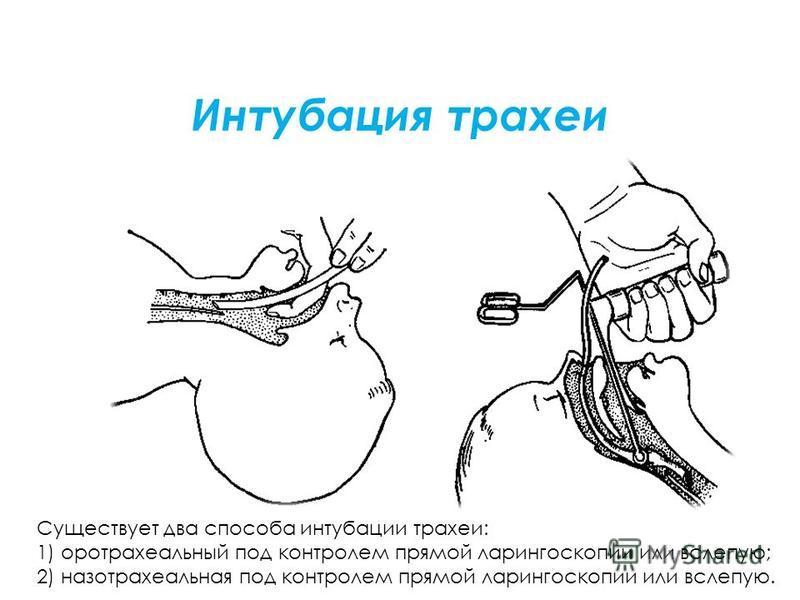 Интубация трахеи Существует два способа интубации трахеи: 1) оротрахеальный под контролем прямой ларингоскопии или вслепую; 2) назотрахеальная под контролем прямой ларингоскопии или вслепую.