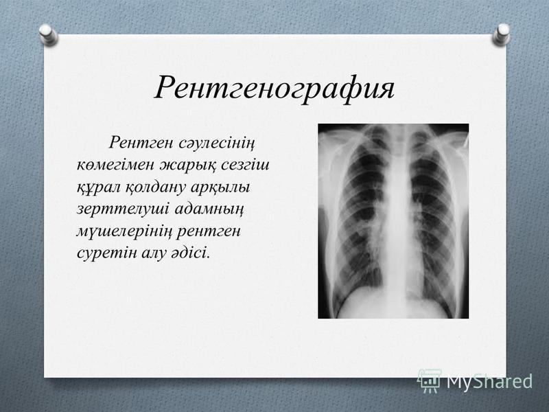Рентгенография Рентген сәулесінің көмегімен жарық сезгіш құрал қолдану арқылы зерттелуші адамның мүшелерінің рентген суретін алу әдісі.