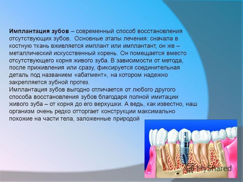 Имплантация зубов – современный способ восстановления отсутствующих зубов. Основные этапы лечения: сначала в костную ткань вживляется имплант или имплантант, он же – металлический искусственный корень. Он помещается вместо отсутствующего корня живого