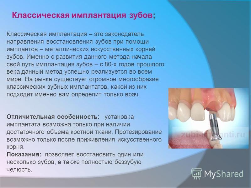 Классическая имплантация зубов; Классическая имплантация – это законодатель направления восстановления зубов при помощи имплантов – металлических искусственных корней зубов. Именно с развития данного метода начала свой путь имплантация зубов – с 80-х