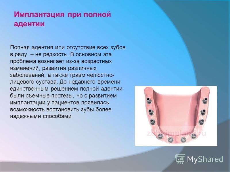 Имплантация при полной адентии Полная адентия или отсутствие всех зубов в ряду – не редкость. В основном эта проблема возникает из-за возрастных изменений, развития различных заболеваний, а также травм челюстно- лицевого сустава. До недавнего времени