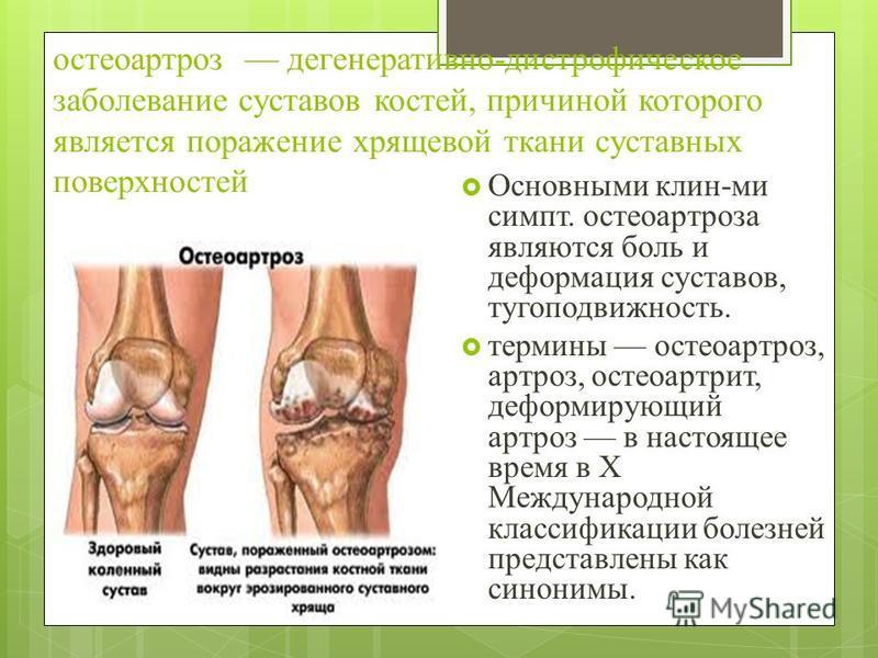 остеоартроз дегенеративно-дистрофическое заболевание суставов костей, причиной которого является поражение хрящевой ткани суставных поверхностей Основными клин-ми симпт. остеоартроза являются боль и деформация суставов, тугоподвижность. термины остео