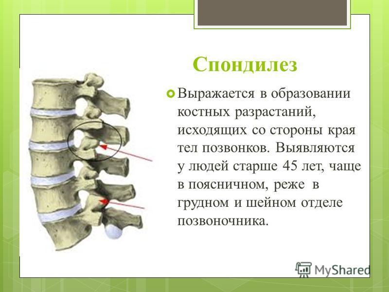Спондилез Выражается в образовании костных разрастаний, исходящих со стороны края тел позвонков. Выявляются у людей старше 45 лет, чаще в поясничном, реже в грудном и шейном отделе позвоночника.