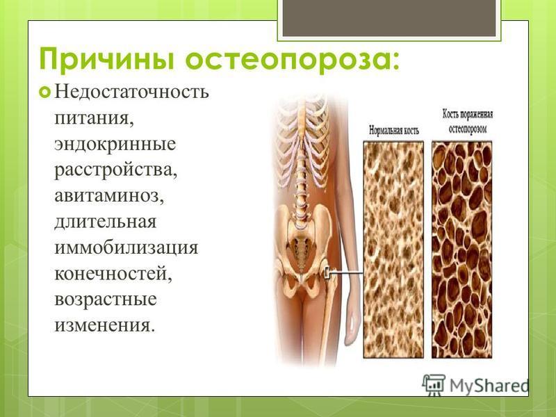 Причины остеопороза: Недостаточность питания, эндокринные расстройства, авитаминоз, длительная иммобилизация конечностей, возрастные изменения.