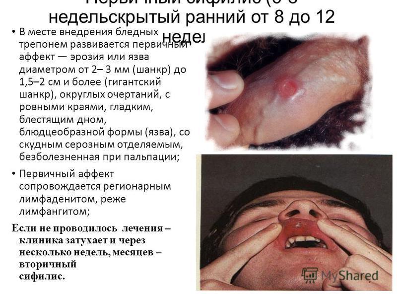 Первичный сифилис (6-8 недель скрытый ранний от 8 до 12 недель В месте внедрения бледных трепонем развивается первичный аффект эрозия или язва диаметром от 2– 3 мм (шанкр) до 1,5–2 см и более (гигантский шанкр), округлых очертаний, с ровными краями,