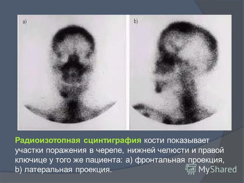 Радиоизотопная сцинтиграфия кости показывает участки поражения в черепе, нижней челюсти и правой ключице у того же пациента: a) фронтальная проекция, b) латеральная проекция.